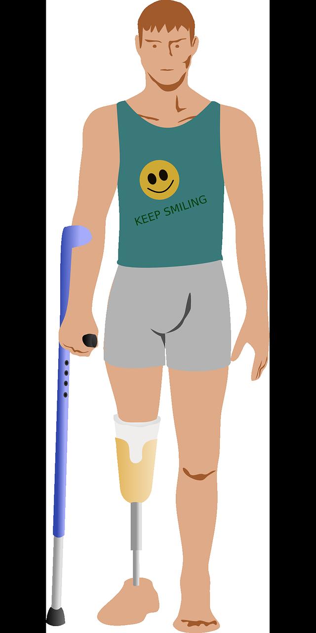 Amputation,prosthetics,leg,crutch,crutches - free image from needpix.com
