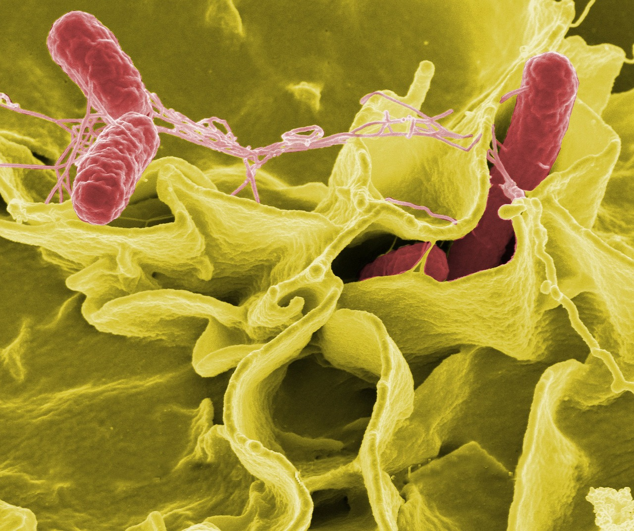 bacteria salmonella pathogens free photo