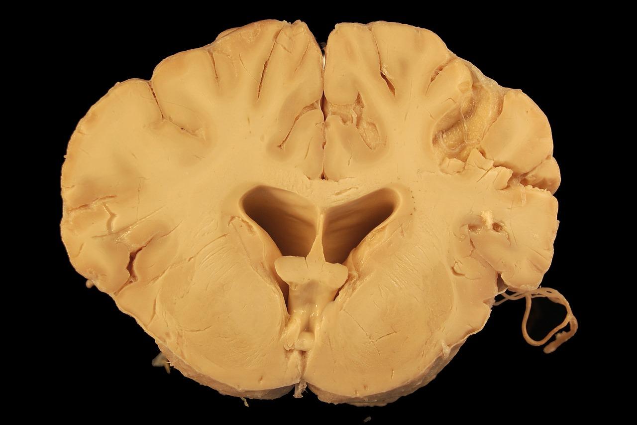 Brain,anatomy,dog,cerebrum,ventricle - free photo from needpix.com