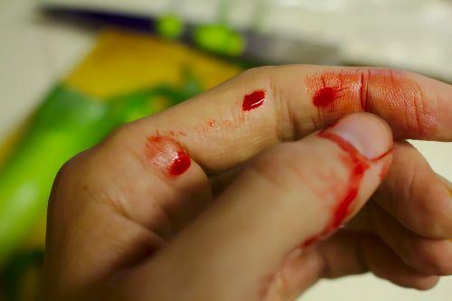 accident bleed bleeding