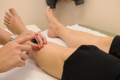 acupuncture therapy physical therapy
