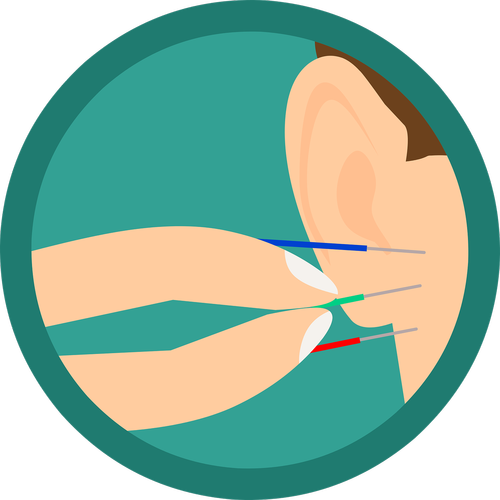 acupuncture  ear  needles