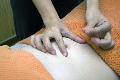 acupuncture  physiotherapy  wellness