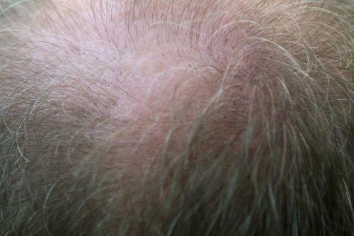 adult bald balding