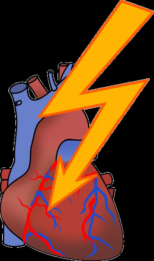 arrhythmia heart attack cardiac