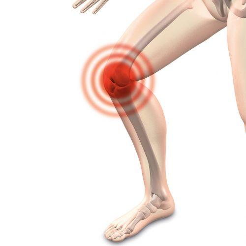 arthrocalman osteoarthritis knee