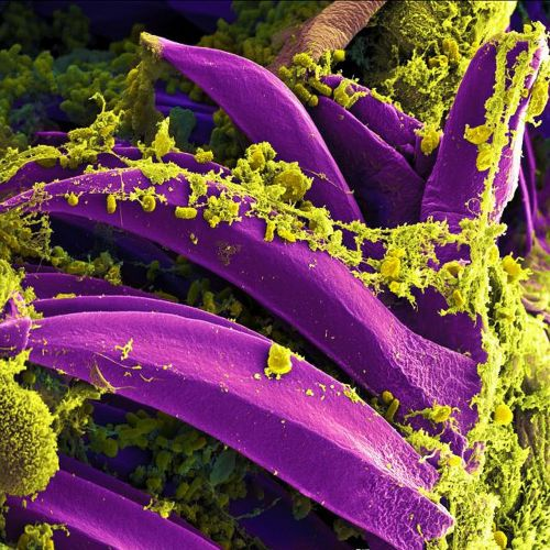 bacteria electron microscope stained purple