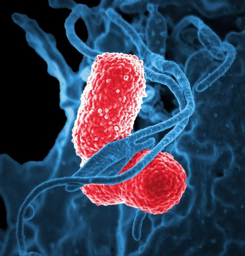 bacteria electron microscope klebsiella pneumoniae