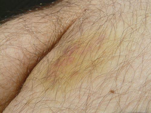 blue blot haematoma hematoma