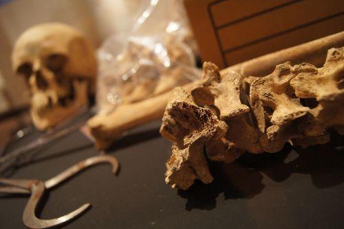 bones skull death
