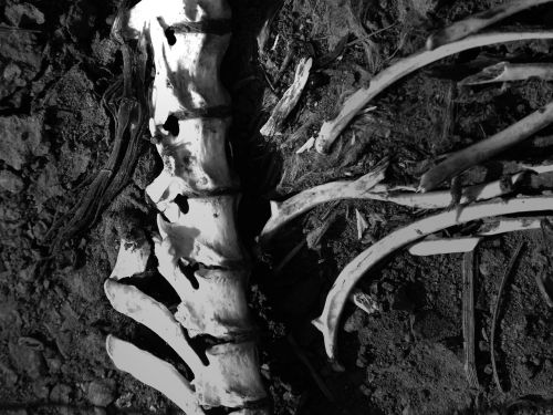 bones vertebral column corpse