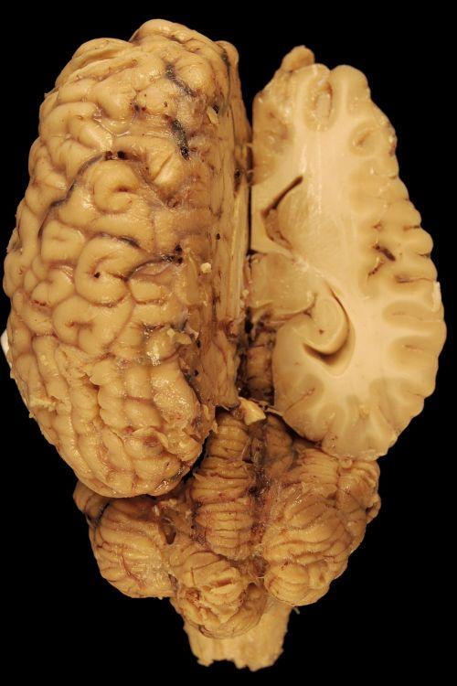brain anatomy horse