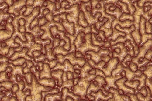 brain mass brain mass