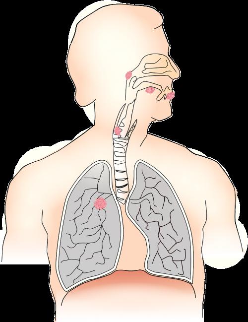 cancer carcinoma metastases