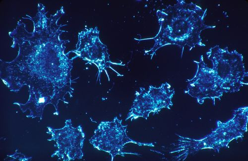 cancer cells cells scan