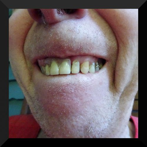 Closeup Showing Teeth