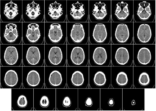 computer tomography ct radiography