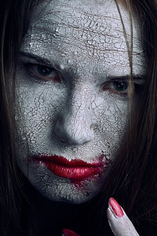 cracked  skin  white