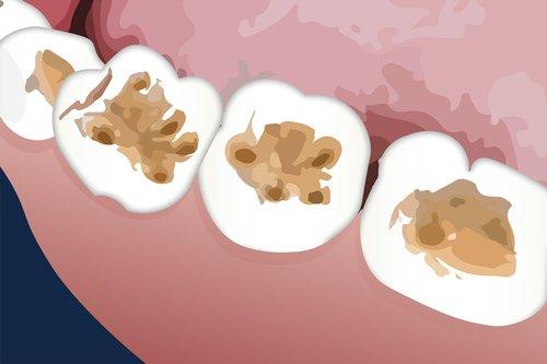 dental  tooth  enamel