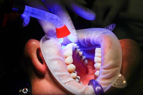 dentist facet uv light