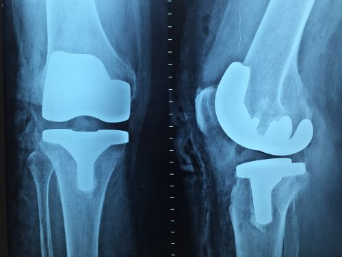 doctor orthopedics x-ray
