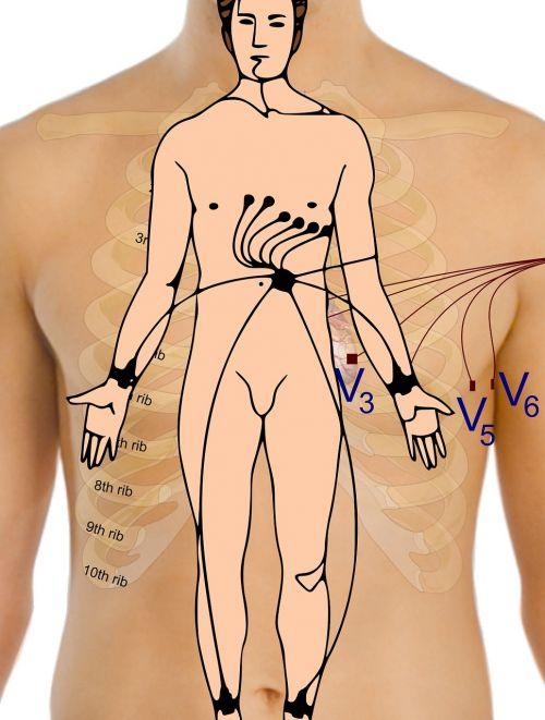 electrocardiogram body points