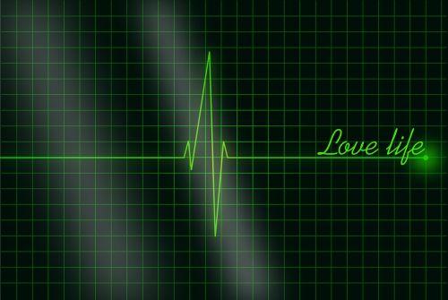 electrocardiogram the rhythm heart rhythm