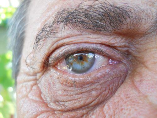 eye blue gene
