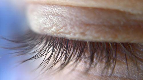 eye lid eye-lid