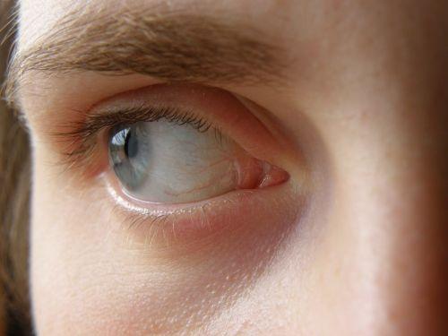eye blue iris