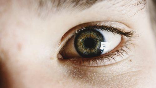 eyes green brown
