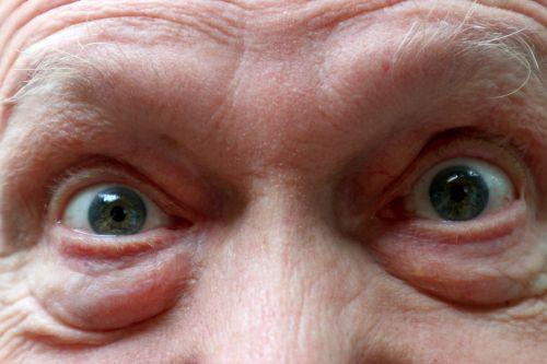 an, senas, vyras, akys, uždaryti & nbsp, makro, fotografija, raukšlės, patinsta, pūkuotas, amžius, akys uždaryti