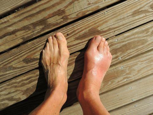 feet gout pain