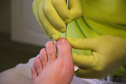foot care  podiatry  treatment