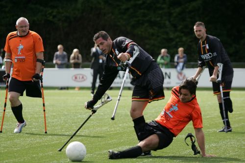 football game amputation