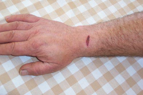 Gash Wound On Arm