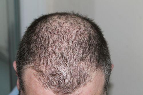 hair man hair loss