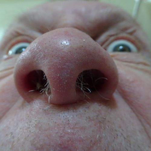 Hairy Nose