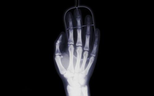 ranka,x ray,x ray image,pelė,žvilgsnis,kompiuteris,internetas,priklausomybe,radiacija,užteršta