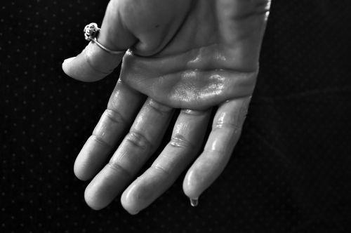 hand hyperhidrosis sweating