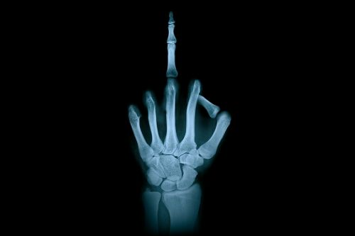 hand middle finger x-ray radiation