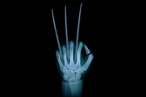 hand adamantium wolverine