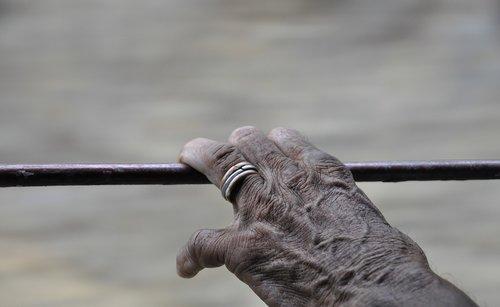 hand  skin  wrinkles