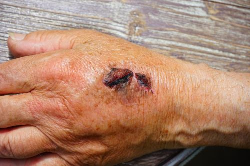 hand injury skin abrasion