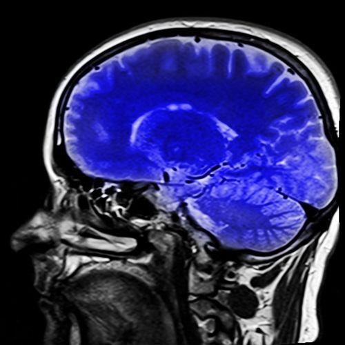 galva,magnetinio rezonanso tomografija,ponas T,x ray,x ray image,smegenys,mėlynas
