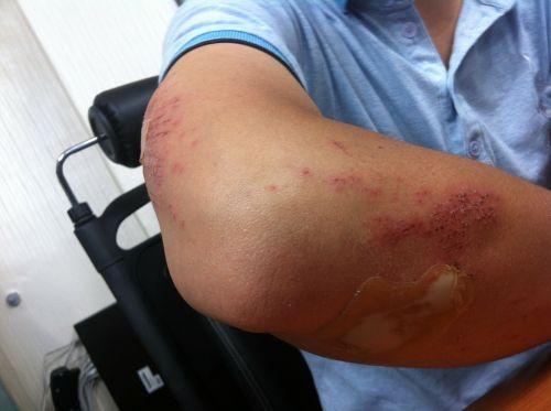 injury arm injured