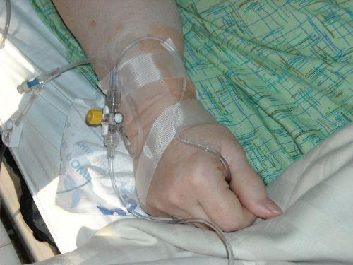intravenous hand wrist
