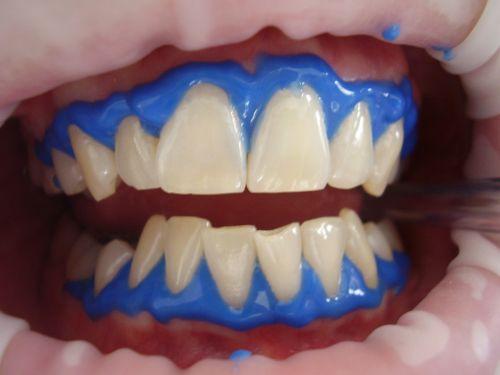 laser teeth whitening dental whitening