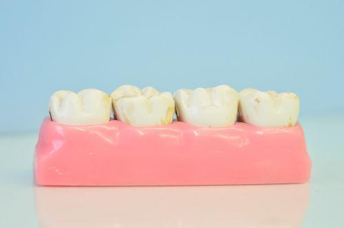 macromodelo of teeth dental office teeth