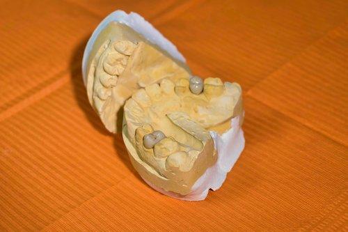 mold  dental  dentist